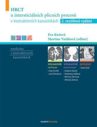 HRCT u intersticiálních plicních procesů v instruktivních kazuistikách, 2. rozšířené vydání