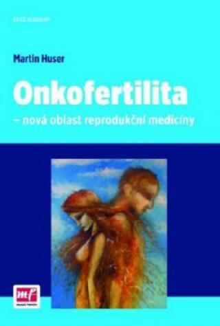 Onkofertilita – nová oblast reprodukční medicíny - Huser Martin