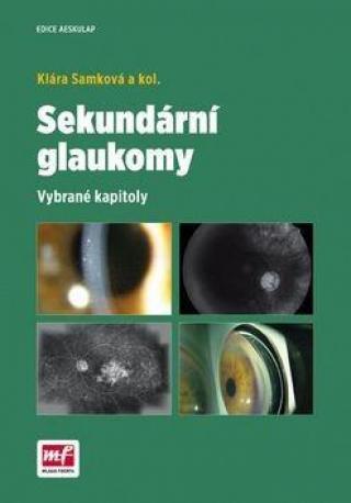 Sekundární glaukomy - Samková Klára